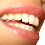 Gesunde Zähne - für ein gewinnbringendes Lächeln.