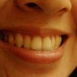 Gesunde Zähne sorgen nicht nur für ein schönes Lächeln, sondern haben auch positive Auswirkung auf das Immunsystem.